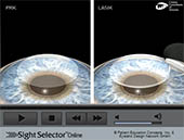 Secondary Cataract (YAG)