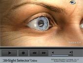 Correcting Myopia